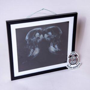 Double Headed Calf X-Ray