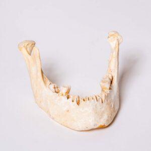 Human Mandible / Jaw A2 Specimen